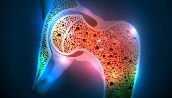 bone disease14